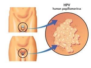 HPV, brodawki płciowe