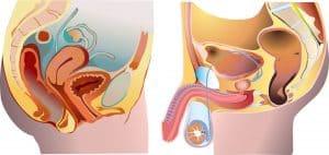 problemy urologiczne - lista