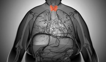 Female thyroid gland  anatomy in x-ray view