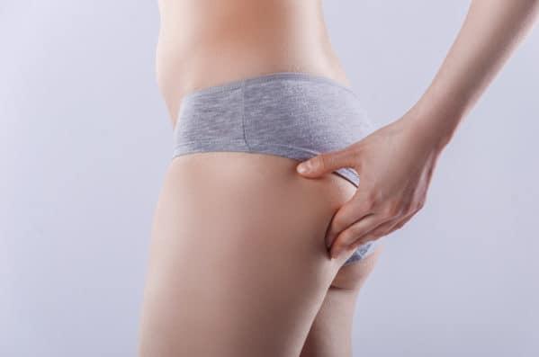 Antykoncepcja hormonalne - skutki uboczne: cellulit