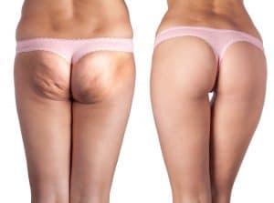 cellulit - skutek uboczny kuracji hormonalnej