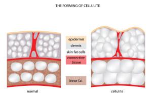 Wpływ antykoncepcji hormonalnej na skórę