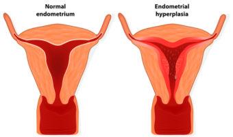 Endometrium - norma, budowa, choroby