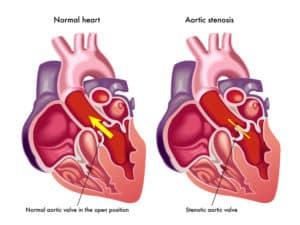 Arterioskleroza - zwężenie naczyń krwionośnych serca