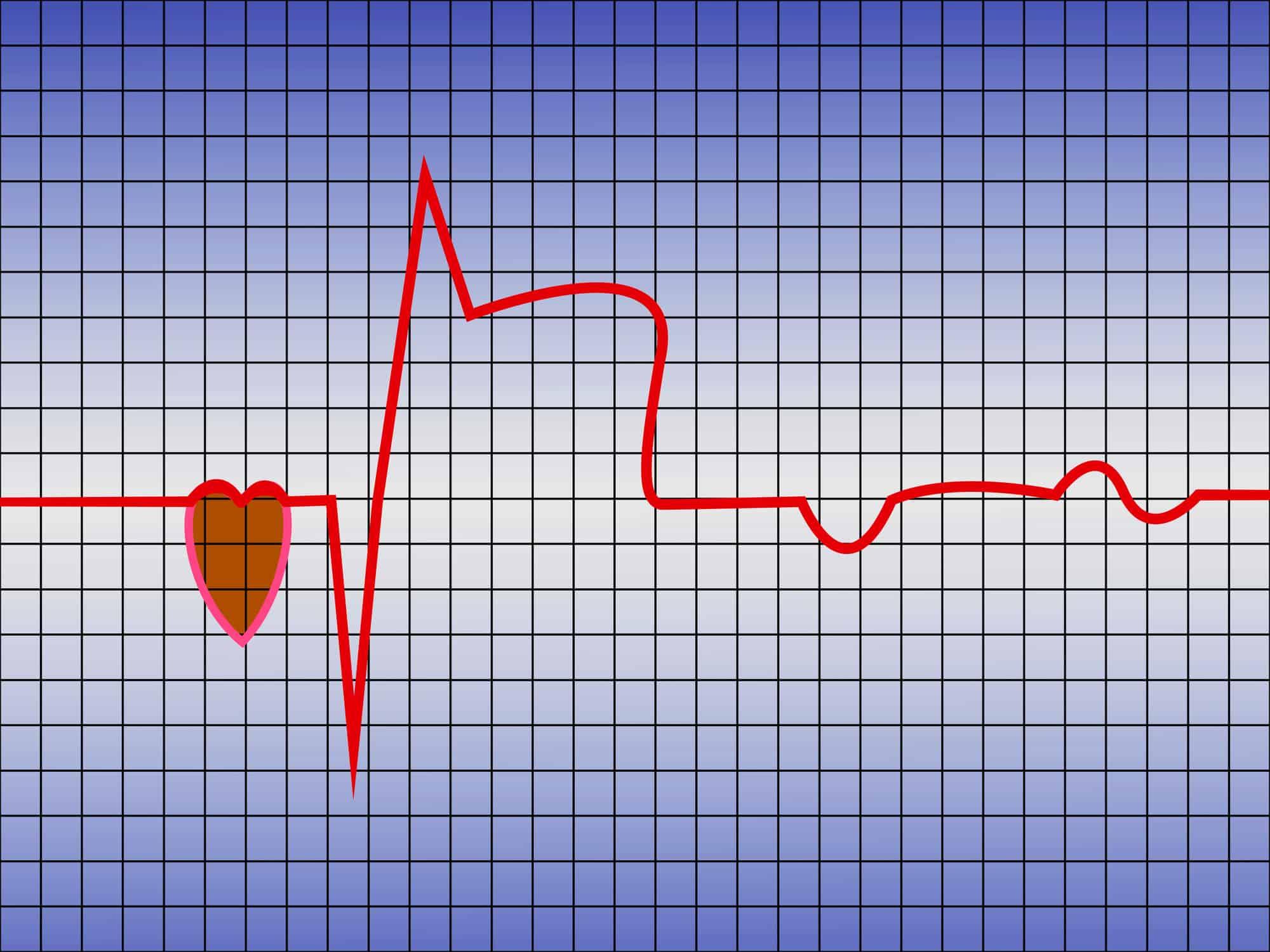 Powrót do życia seksualnego po zawale serca