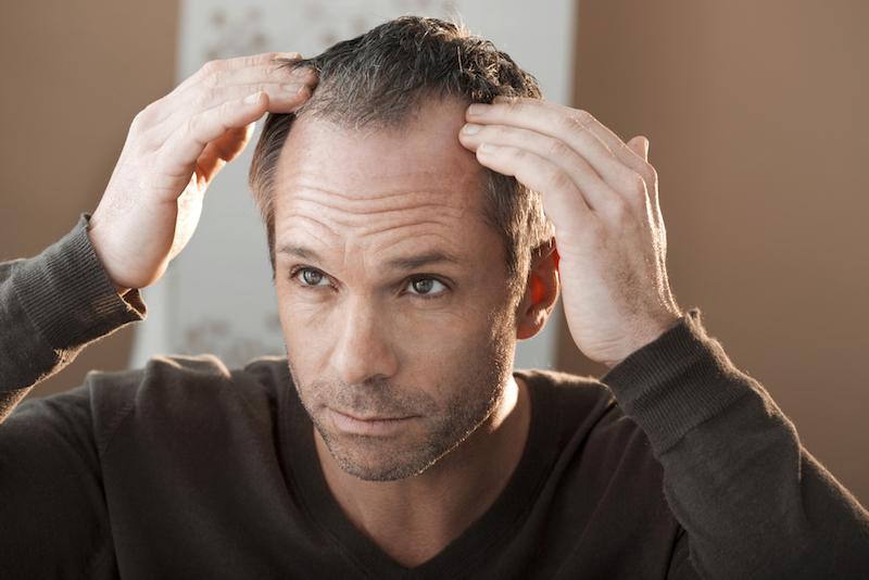 Co zrobić, żeby zachowac bujne włosy?