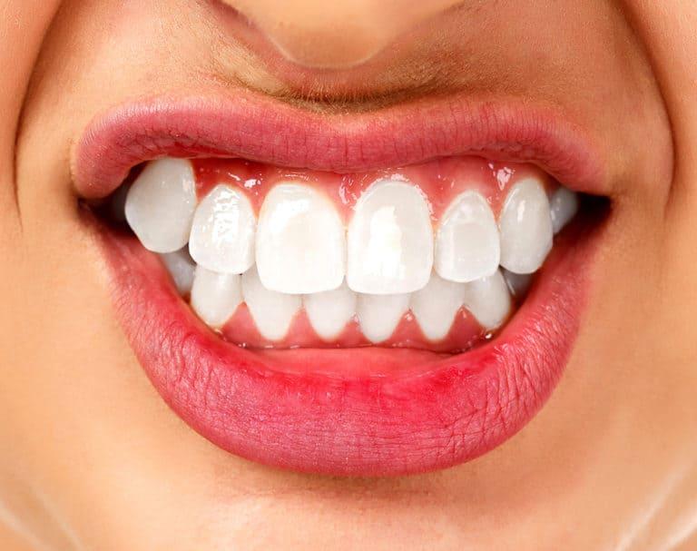 Bruksizm – nocne zgrzytanie zębami