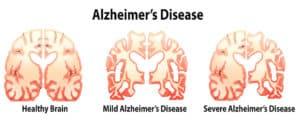 Alzheimer I demencja